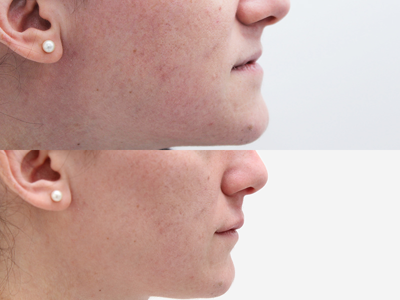 Upper Lip Correction